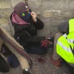 巴黎黃背心示威者 手臂遭炸斷