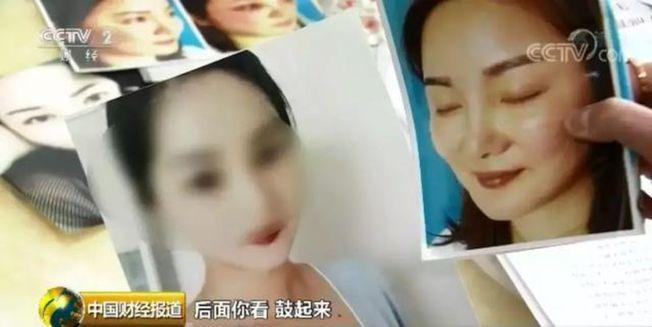 深圳一家整容培訓學校宣稱「會縫衣服,就會割雙眼皮」。(視頻截圖)