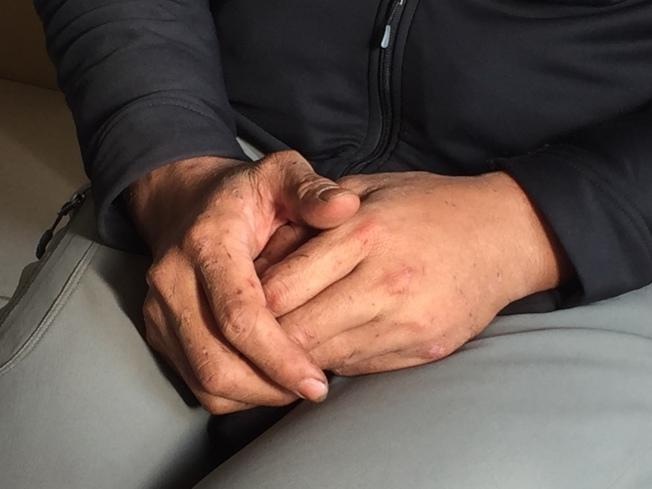 傷口3周內不癒合,要注意免疫系統恐出問題。(本報資料照片)