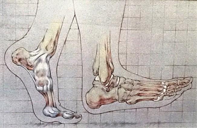足部不适往往造成患者寸步难行。(图:关学廉诊所提供)
