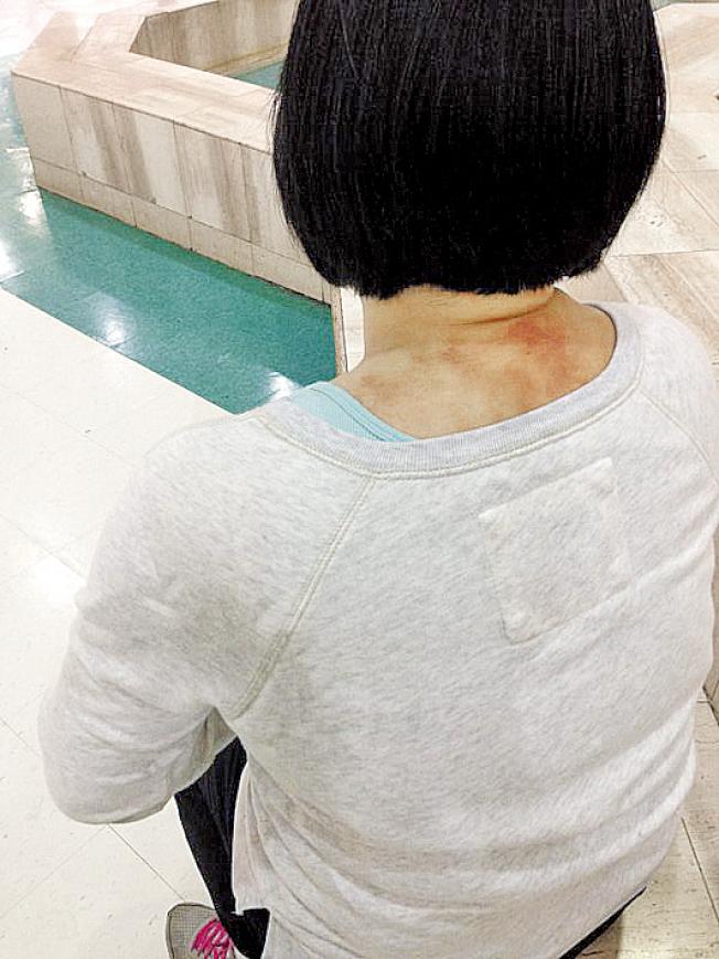 2015年抢案发生时,季女士脖子也被拖行时擦伤。(季女士提供)