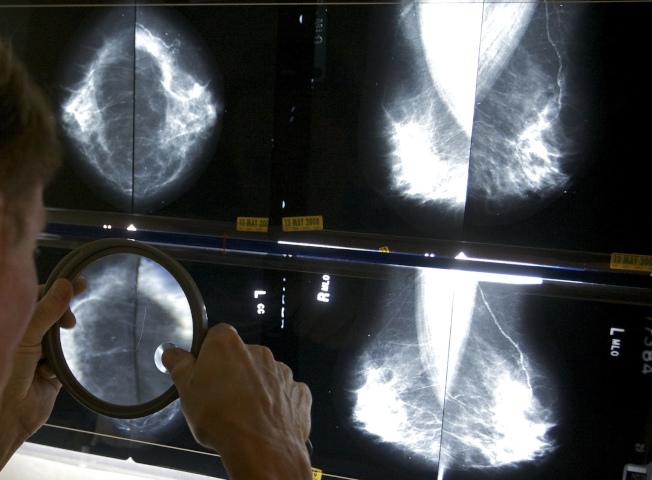 FDA新規定要求,做完乳房檢查後,檢驗單位必須提供乳癌風險評估。圖為放射線技師正檢視乳房X光片。(美聯社)