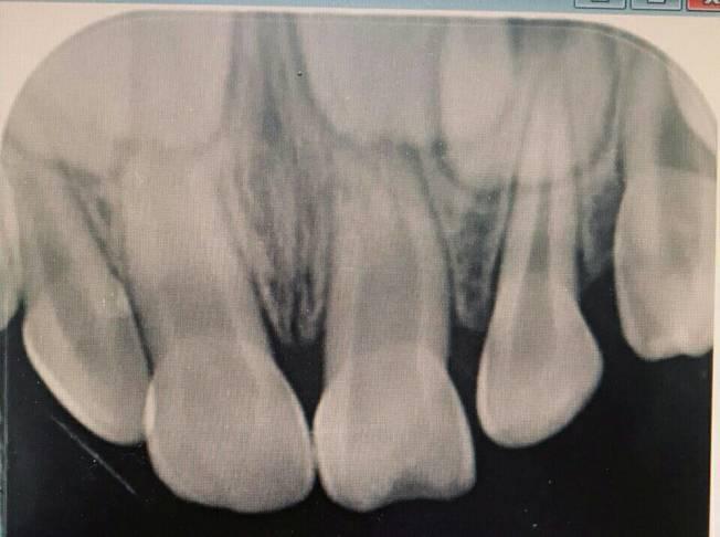 掉牙含嘴裡 半小時內能植回