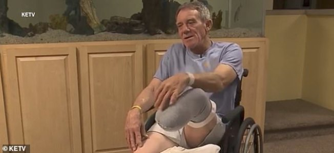 內布拉斯加州農民卡瑟上月在自己的農場工作時,一條腿被卡在機器裡。當時他獨自一人,知道須迅速做出決定,便用一把小折刀切斷自己的腿,以脫離機器。(KETV電視台截圖)