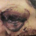 女子法拉盛跌倒 摔出眼球失明 獲賠125萬