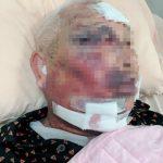 喝不下兒子送到面前的竹筍湯 85歲翁被打斷2根肋骨