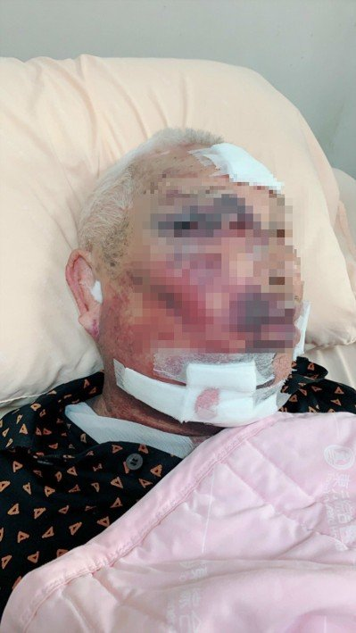85歲謝姓老翁因吃飽不想喝大兒子端的竹筍湯竟被打得鼻青臉腫,甚至連肋骨也斷了2根。圖/讀者提供