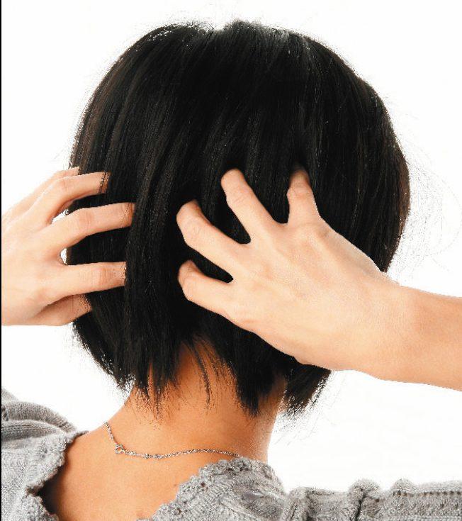 頭髮濃密是許多人的願望。(本報資料照片)