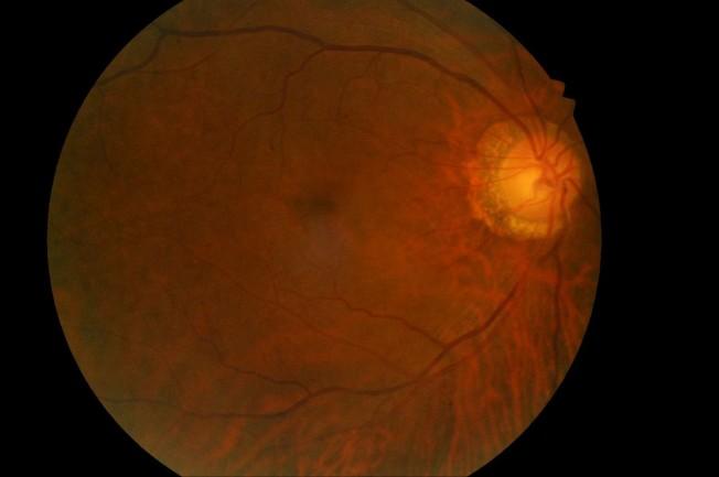 台灣安南醫院一名患者左眼中風,右眼正常眼球呈現暗紅色。(圖:安南醫院提供)