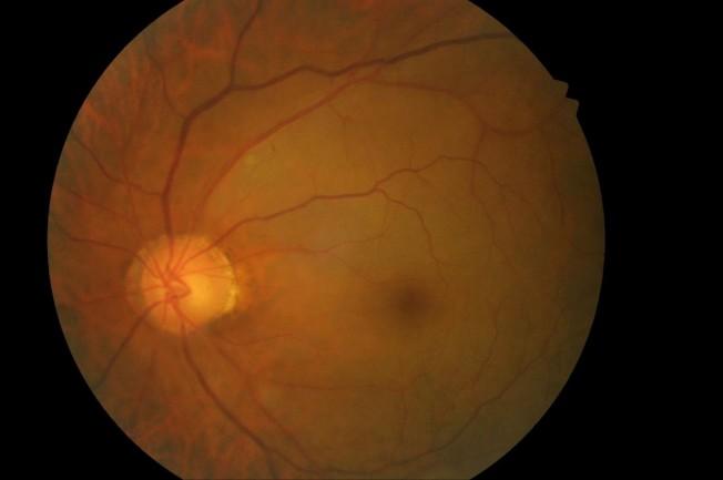 安南醫院一名患者左眼動脈阻塞型眼底中風,眼球明顯因為黃斑部區缺血以致變白無血色。(圖:安南醫院提供)