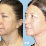面部抗衰新境界   無需全身麻醉 完成全臉拉皮