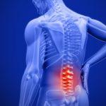脊椎治療師梁庭謙解答常見背痛問題