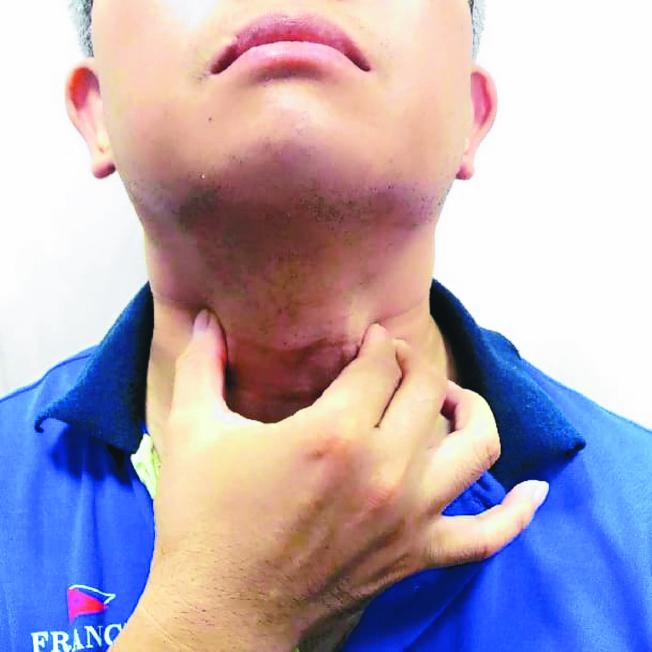 喉嚨不舒服,除了飲食保養外,還可按摩穴道紓緩,將會有所助益。(本報資料照片)