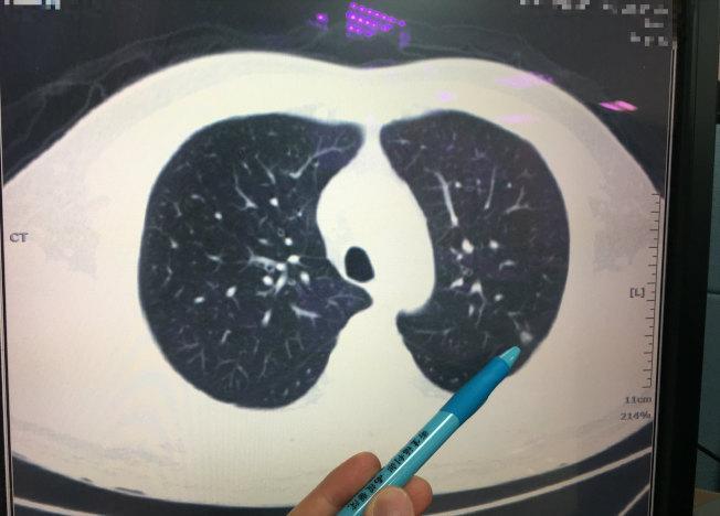 患者經LDCT檢出左上肺部分有0.7和0.4公分結節,切片檢查確診是肺癌第一期。(圖:南投醫院提供)