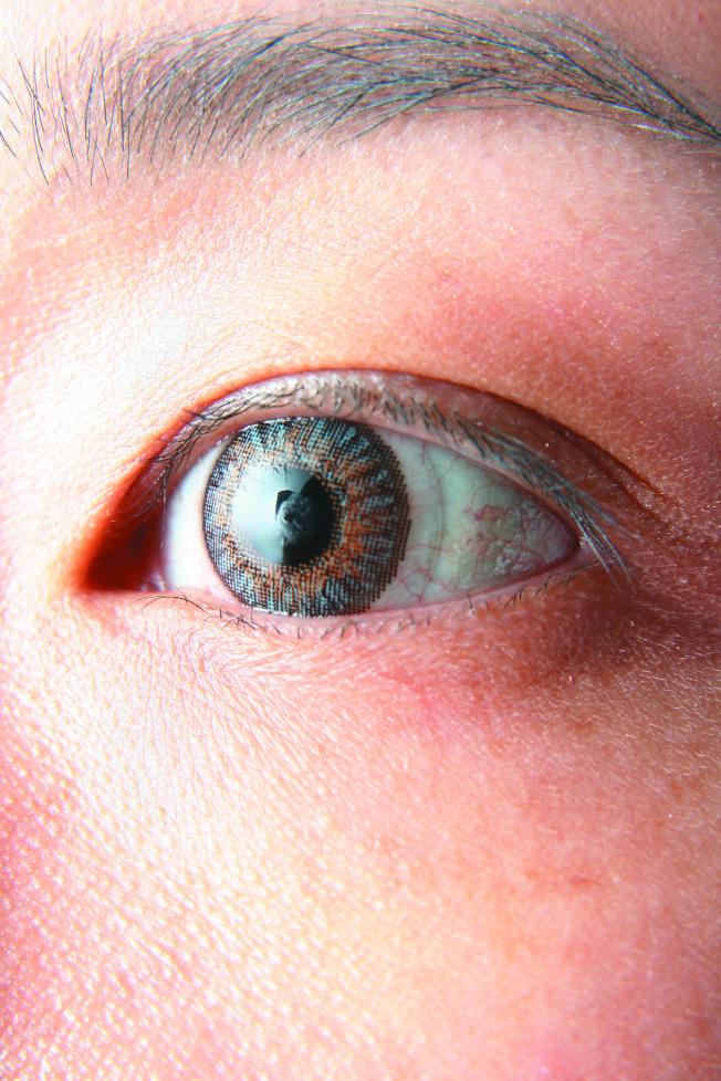 白內障和黃斑部病變,是老人視力喪失的主因。(本報資料照片)