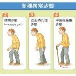 走路變慢、擺動減少…當心可能腦部病變透端倪