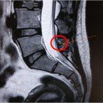 下背痛纏身 竟是先天性脊柱裂