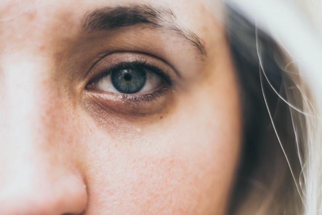 眼睛疲勞也會讓眼袋更明顯喔!圖/摘自 pexels