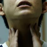 喉嚨卡卡 小心是胃食道逆流