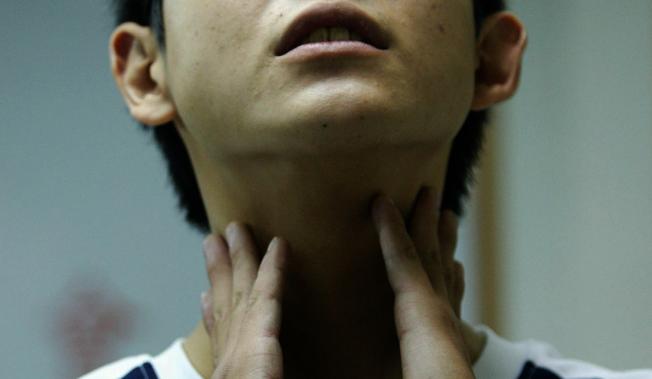 長期反覆性的胃食道逆流增添了罹患食道癌的機率,常反覆清喉嚨也可視為是一種警訊。(本報資料照片)