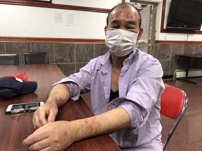 石先生做工被化學藥劑灼傷臉部和手臂。(記者張晨/攝影)