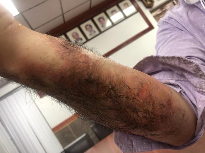 石先生手臂兩側被大面積灼傷。(記者張晨/攝影)