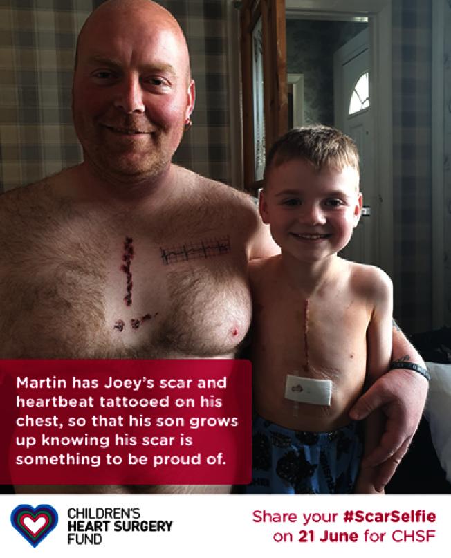 爸爸紋上跟兒子一樣的傷疤,鼓勵他繼續樂觀。圖取自臉書
