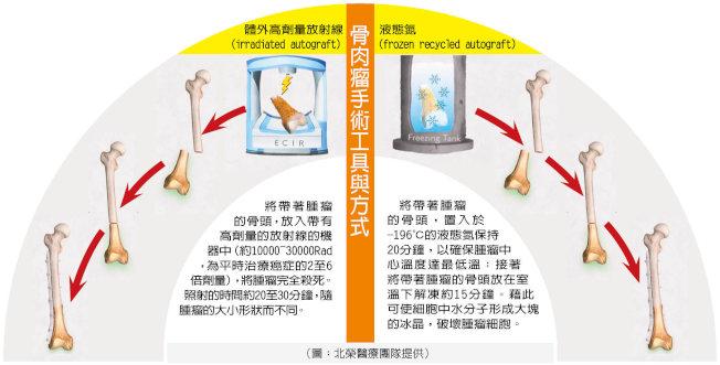 骨肉瘤手術工具與方式(圖:北榮醫療團隊提供)
