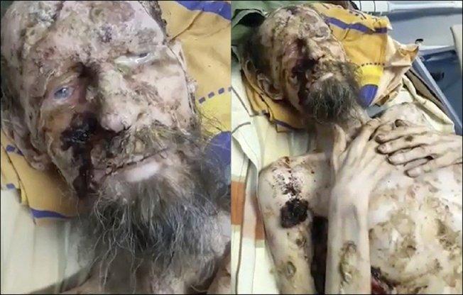 俄羅斯西伯利亞獵人隊伍日前在一處熊穴找到一名骨瘦如柴、模樣宛如「活屍」的一名男子。畫面翻攝:The Siberian Times