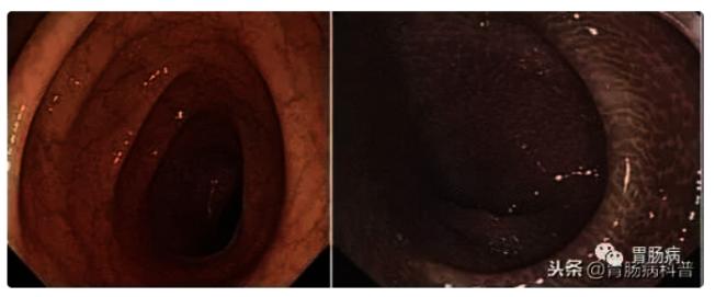 左为正常肠粘膜,右为黑肠病。