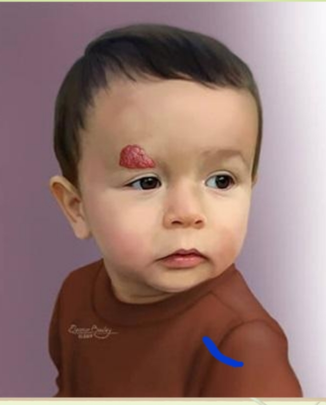 嬰兒型血管瘤好發在女嬰的脖子上。圖/成大提供