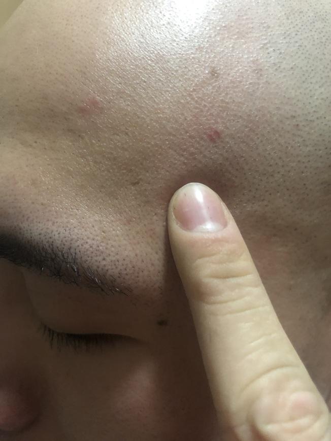 中醫觀點,額頭的痘痘往往反映心火旺。(本報資料照片)
