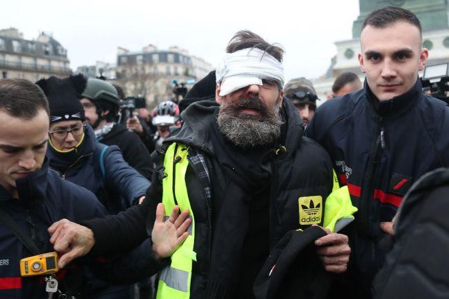 黃背心示威者侯德瑞格斯,今年1月遭橡膠子彈打中右眼。(Getty Images)