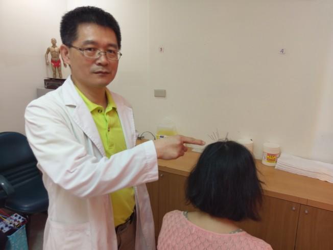 台灣衛福部豐原醫院醫師,指出婦人原本掉髮位置。(記者游振昇/攝影)