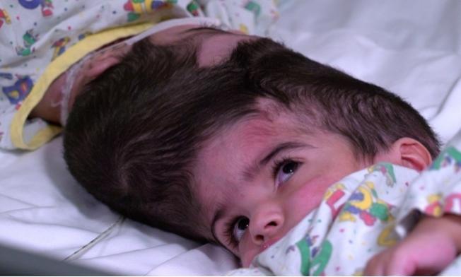 巴基斯坦2歲雙胞胎連頭女嬰終於在英國成功分割。(取自Great Ormond Street Hospital)