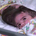 「連頭」女嬰成功分離!超過百名專家助陣