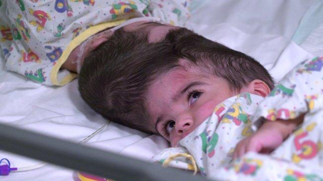 一對巴基斯坦的連頭2歲女嬰在接受超過50小時的手術後,不只是成功分離且已順利出院。圖擷自/Safa and Marwa