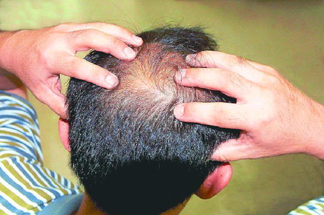 禿髮原因很多,需對症治療。(本報資料照片)