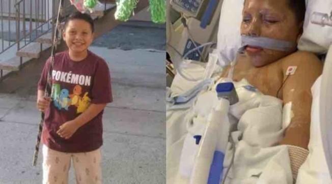 左圖為卡雷托雙手健全時的愉快時光,右圖為卡雷托躺在醫院。(家人提供)