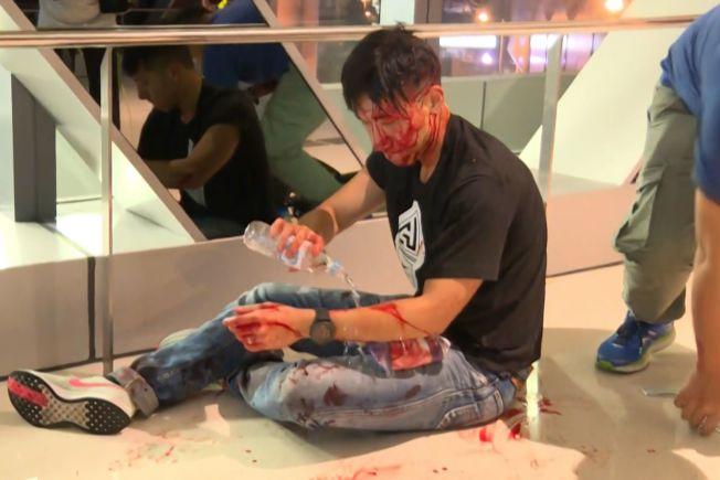 21日深夜,香港元朗西鐵站出現大批白衣人暴打身穿黑衣的民眾和媒體記者,造成45人受傷。圖為一位媒體人被打,血流滿面。(Getty Images)