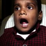 男童長526顆牙齒!為一般人的16倍