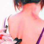 刮痧去暑氣 有用嗎? 中西醫不同調 觀點交鋒