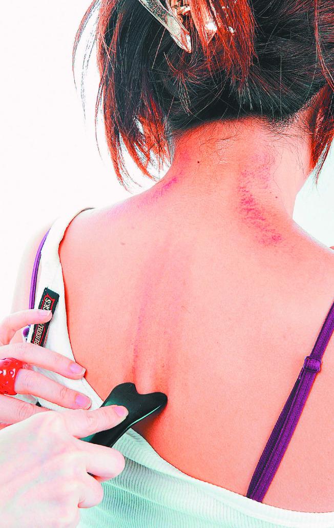刮痧可以緩解輕微的中暑,但孕婦不宜。(本報資料照片)