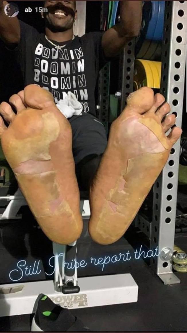 布朗在Instagram上秀著自己腳底板的慘狀。(取材自推特)