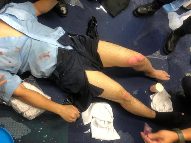 駐守尖沙咀警署的軍裝警員被示威者擲進警署的疑似汽油彈擊中,下肢燒傷。警方消息稱,軍裝警送院後初步診斷左腿有10%二級燒傷、右腿3%一級燒傷。(新華社)