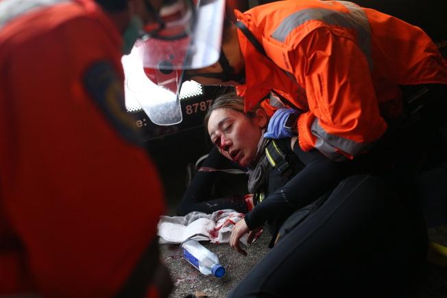 尖沙咀一名女示威者11日疑被布袋弹或橡胶子弹击中,血流满面送院,传永久失明。(欧新社)
