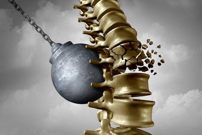 人體骨質量降低,骨頭組織結構因而變得空洞疏鬆,將會有骨折危險之疾病。 圖片來源/ingimage