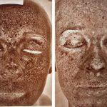 常用3C又愛用日曬機 女子皮膚受傷如「泥巴臉」