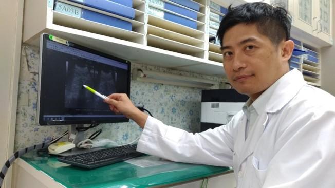 台大醫院新竹分院腎臟科醫師鄭暉騰提醒有中風史病人須留意喝水量。(圖:台大醫院新竹分院提供)