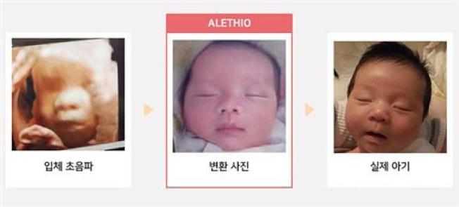 左起為超音波影像、AI生成照片及嬰兒出生後的照片。 (取材自Alethio官網)